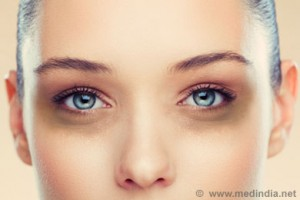How To Beat Dark Circles By Beauty Salon Taringa - Call Us On 07 3871 0477