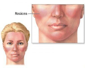 What To Do About Rosacea By Beauty Salon Taringa - Call Us On 07 3871 0477