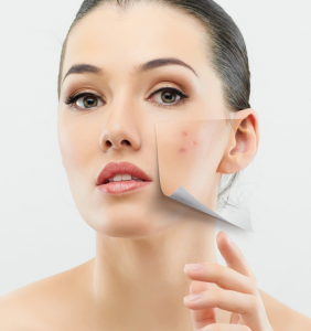 Did You Know This Contributes To Adult Acne? By Beauty Salon Taringa - Call Us On 07 3871 0477