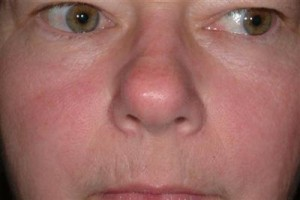 If I Have Rosacea Is It Okay To Get A Facial? By Beauty Salon Taringa - Call Us On 07 3871 0477