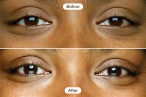 Are Eye Cremes Just A Scam? By Beauty Salon Taringa - Call Us On 07 3871 0477