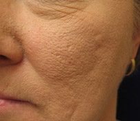 What You Can Do About Large Pores By Beauty Salon Taringa - Call Us On 07 3871 0477