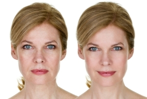 A Wellness Therapy For Rosacea By Beauty Salon Taringa - Call Us On 07 3871 0477