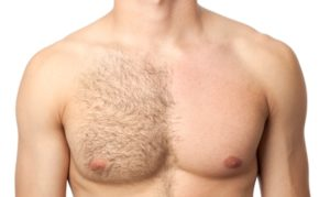 Taming The Hairy Chest