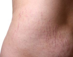 How To Do Away With Stretch Marks
